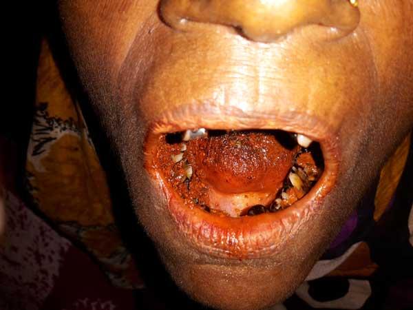 Die Folgen von Betelnuss-Genuss